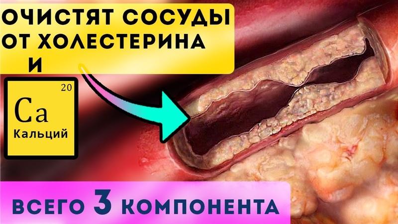 Эта тройка очистит сосуды от холестерина и кальция