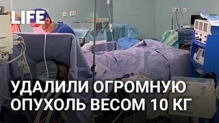 Огромную опухоль удалили пациенту в онкоцентре в Москве