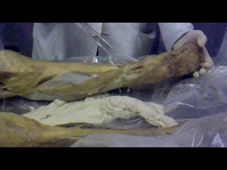 Anatomy musculus membri inferioris