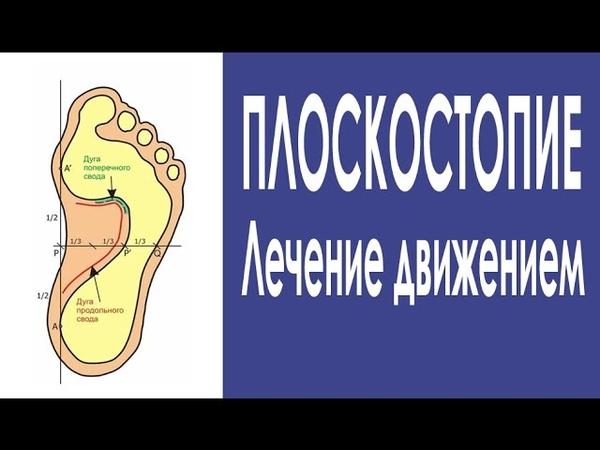 75 Упражнения для лечения плоскостопия Формируем свод стопы