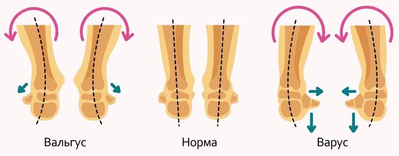 Нужно ли носить ортопедическую обувь детям?, изображение №2