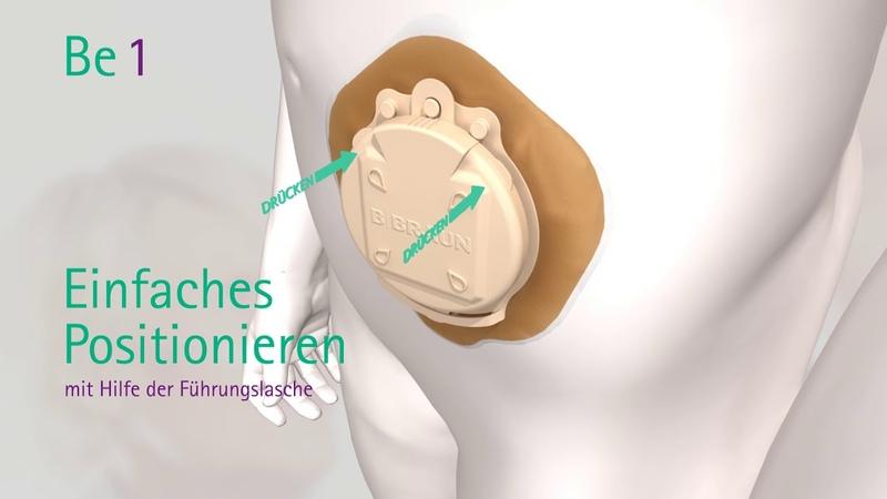 Be 1 - die neue Stomakappe - eine echte Innovation in der Kolostomie-Versorgung