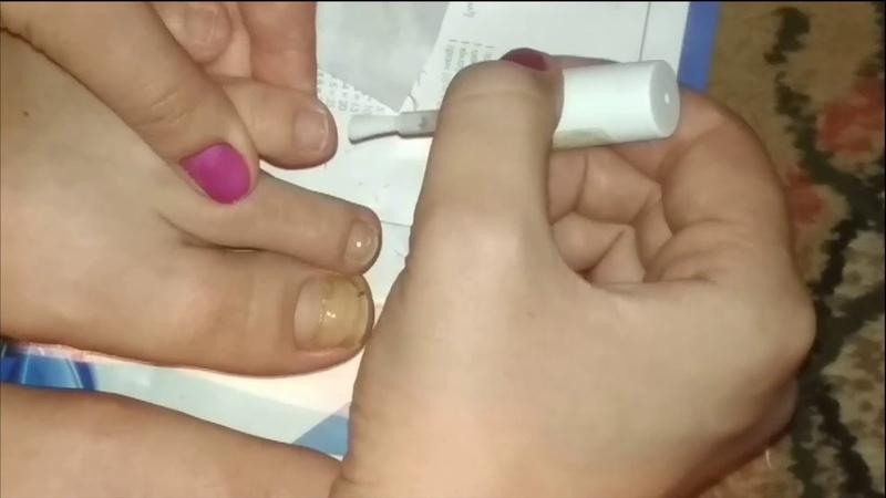 Классический педикюр Готовила ногти к гель лаку но не тут то было 😬 Нужен совет